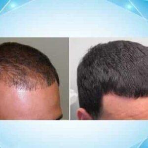 کاشت مو با کمترین قیمت به صورت اقساط